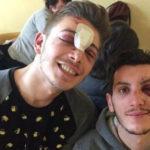 Milano, due giovani gay rapinati e presi a bottigliate dal branco: