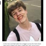 Massacrato di botte perché gay, lui posta la foto sorridente e scrive all'aggressore: «Ti auguro ogni bene»